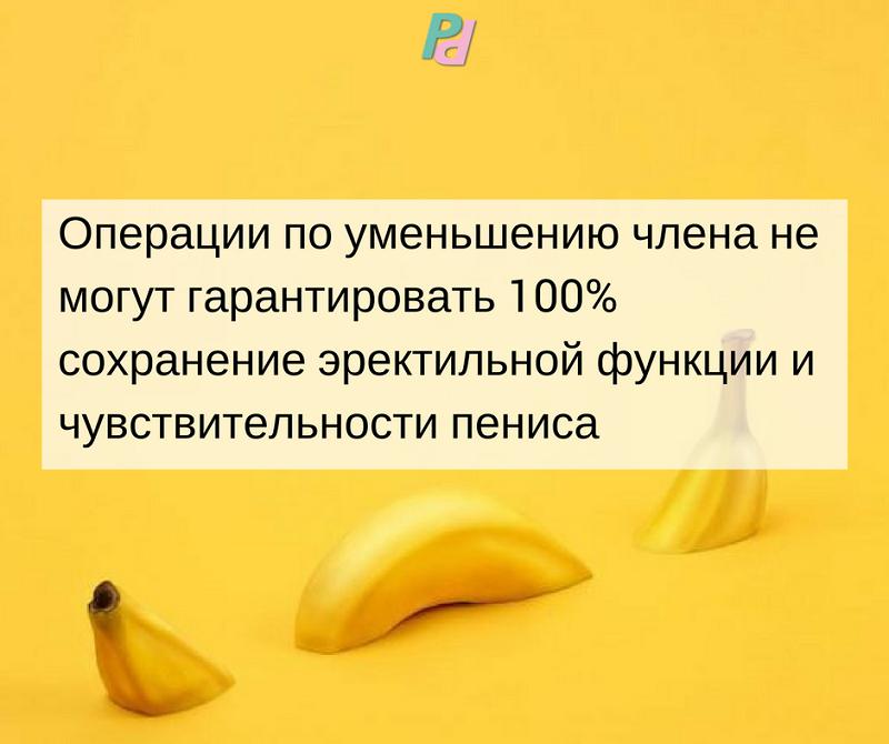 aparat penis ilizarov)
